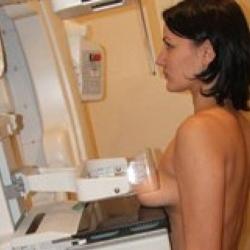 маммография что определяет